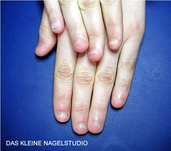 DAS KLEINE NAGELSTUDIO - Hildegard Gruber - Hagstolz 11 - 71720 Oberstenfeld